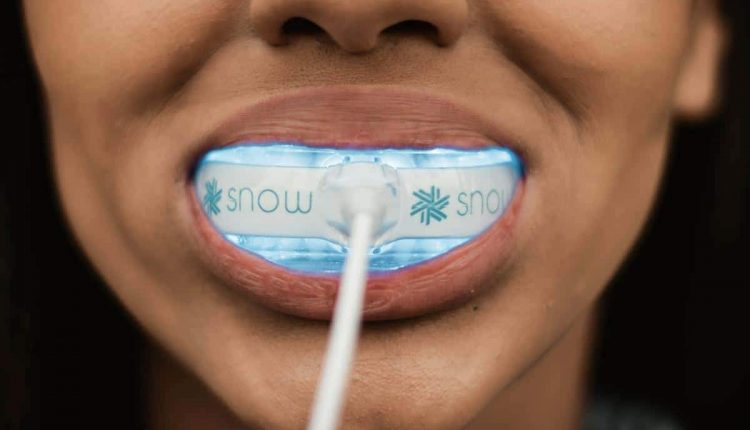 Snow – A Million Dollar Smile In Under 5 Minutes A Day